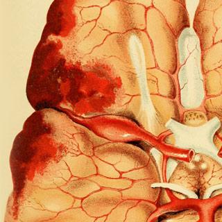 Los ataques epilépticos y el bajar de peso