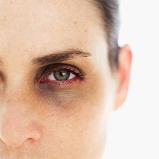ojeras ojos