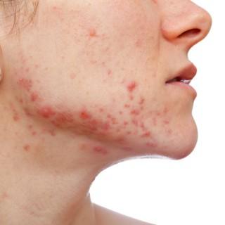 acne a piel sana