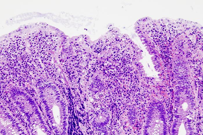 colitis-salud-digestiva
